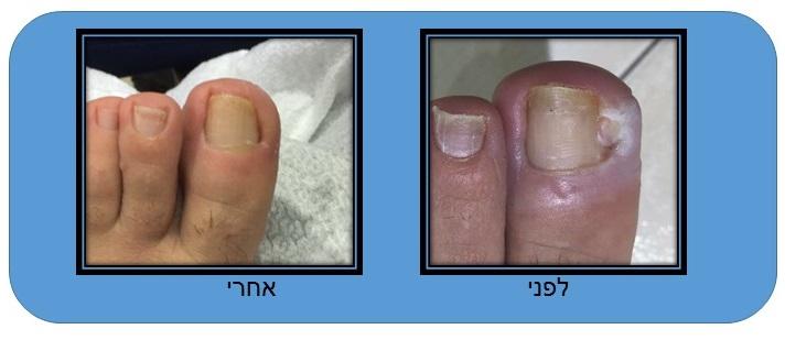 תמונה של ציפורן חודרנית לפני ואחרי